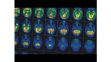 Alzheimer : comment lutter contre la maladie ? - Enquête de santé le documentaire